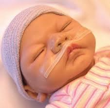 Protector-Nasal-Neonatologico.jpg